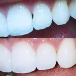 Best Option – Zoom Whitening in Brooklyn